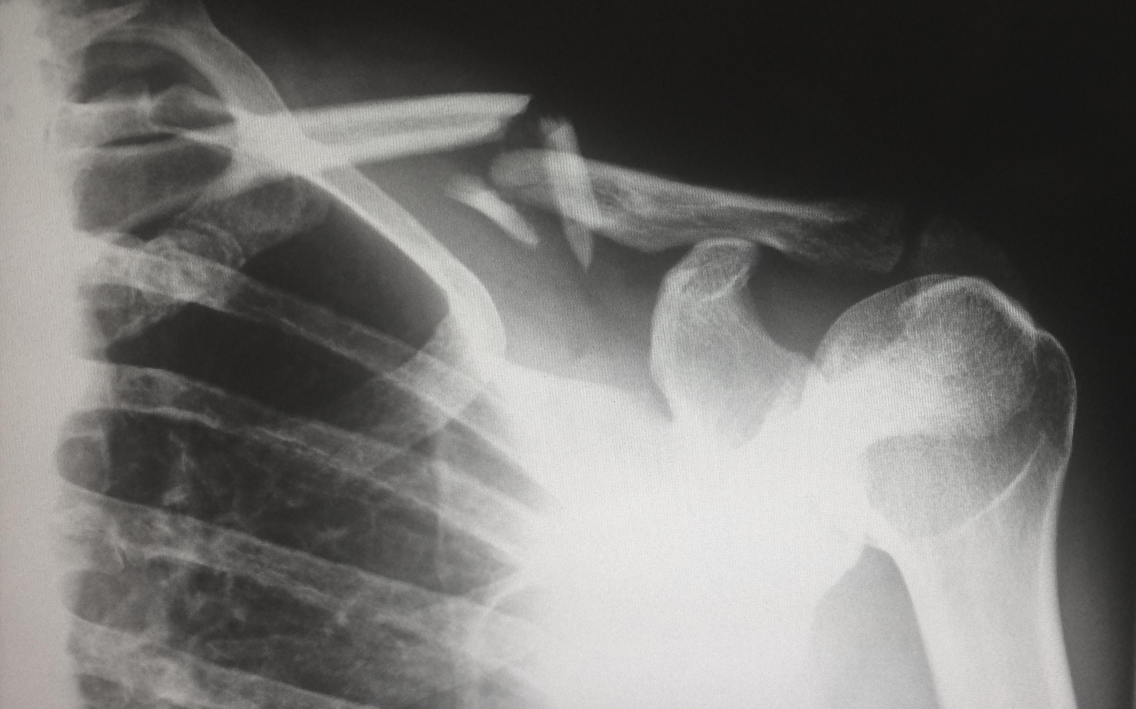 Workers' Compensation Benefits for Broken Bones