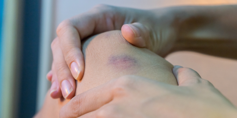 Soft Tissue Injuries from Car Accidents