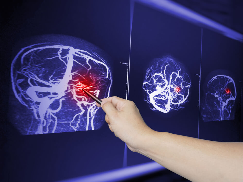 How Traumatic Brain Injuries can affect you?